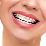ortodoncia_brakets_colima